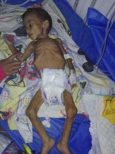 venezuela starving